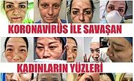 Koronavirüsle Savaşan Kadınların Yüzü Maske İziyle Yaralanıyor